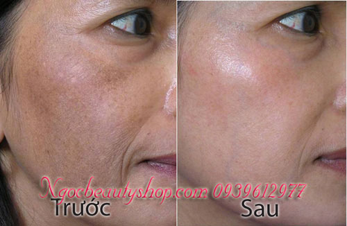 vua_khu_nam_tri_tan_nhang_doi_moi_nhat_ban_ngocbeautyshop.com_0939612977_3